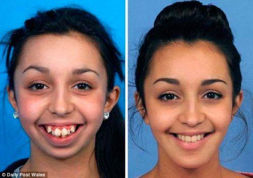el-cambio-radical-de-una-chica-tras-operarse-la-dentadura-y-mandibula-se-vuelve-viral-foto-1-2016