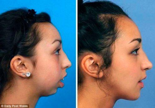 el-cambio-radical-de-una-chica-tras-operarse-la-dentadura-y-mandibula-se-vuelve-viral-foto-2-2016